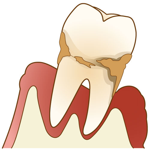 periodontitis_img_01
