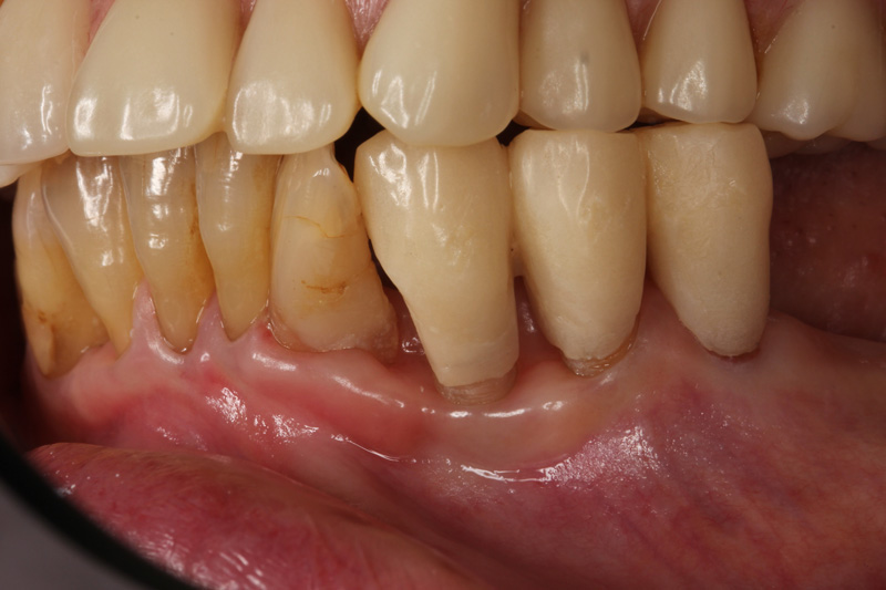 歯ぐきの炎症無くなった写真