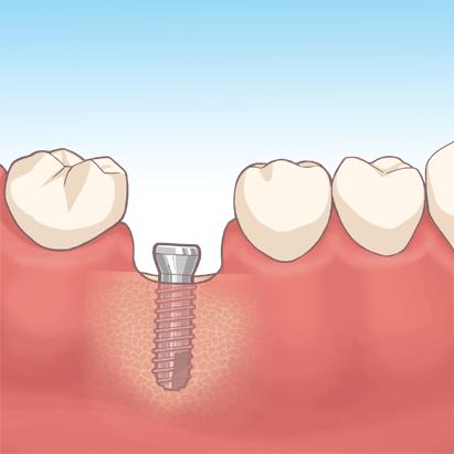 Implant_02