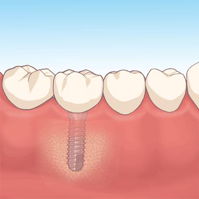 Implant_04